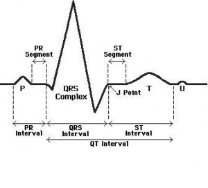 ECG intervals explained