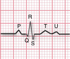 ECG explained for CFRs