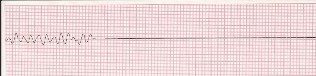 VF to Asystole